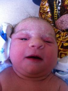 Baby at Birth